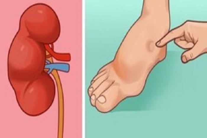Santé-Un mois avant un AVC, votre corps peut vous envoyer des signes d'avertissement.