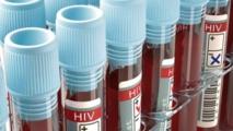 Congo : rupture des antirétroviraux