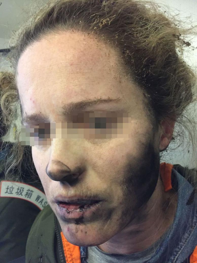 Une Australienne brûlée par l'explosion en vol de ses écouteurs