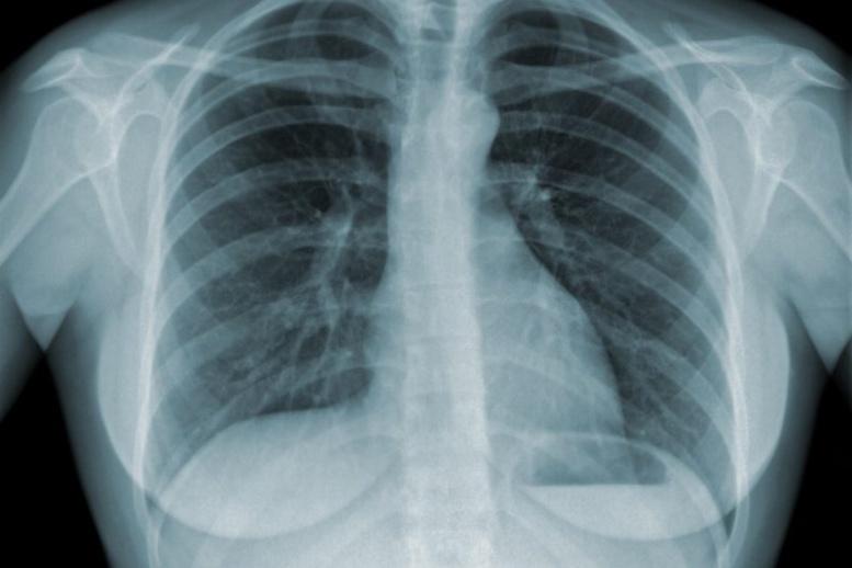 Journée mondiale de lutte contre la tuberculose: 13166 cas enregistrés en 2016 au Sénégal