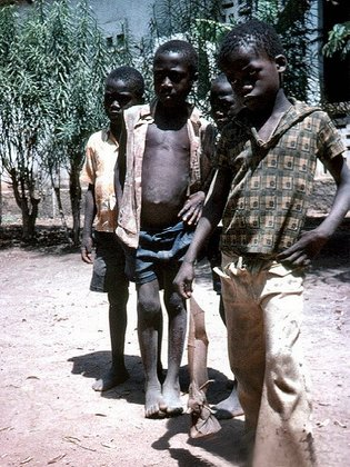 des enfants errant  à la merci de toute sorte de maladies