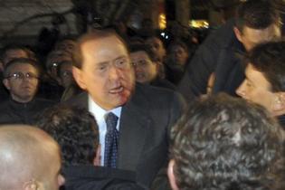 Silvio Berlusconi frappé au visage à l'issue d'un meeting