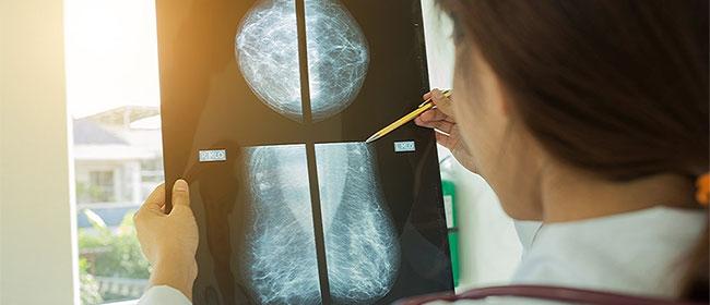 Un logiciel calcule pour chaque femme le risque de cancer du sein