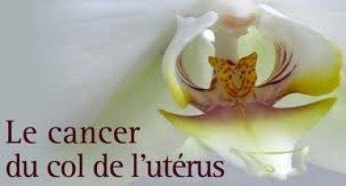 Le Cancer du sein et du col de l'utérus cause 10 millions de décès par an (Spécialiste)