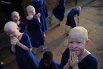 Journée de l'Albinisme : comment '' vivre sous le soleil'' au cœur des débats