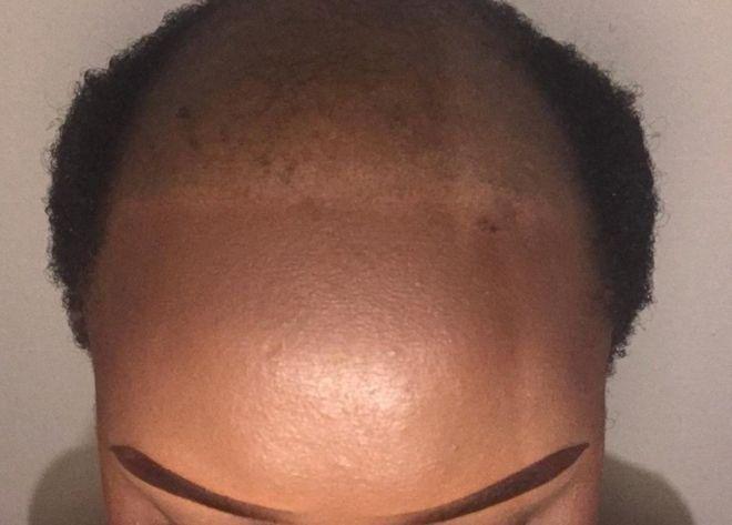 Alopécie: une femme devient chauve en Afrique du Sud