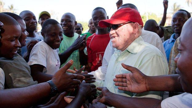 """""""Je me sens davantage en sécurité, en tant qu'albinos"""""""