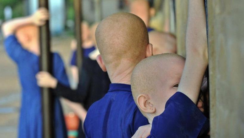 Burundi: le corps d'un jeune albinos retrouvé démembré