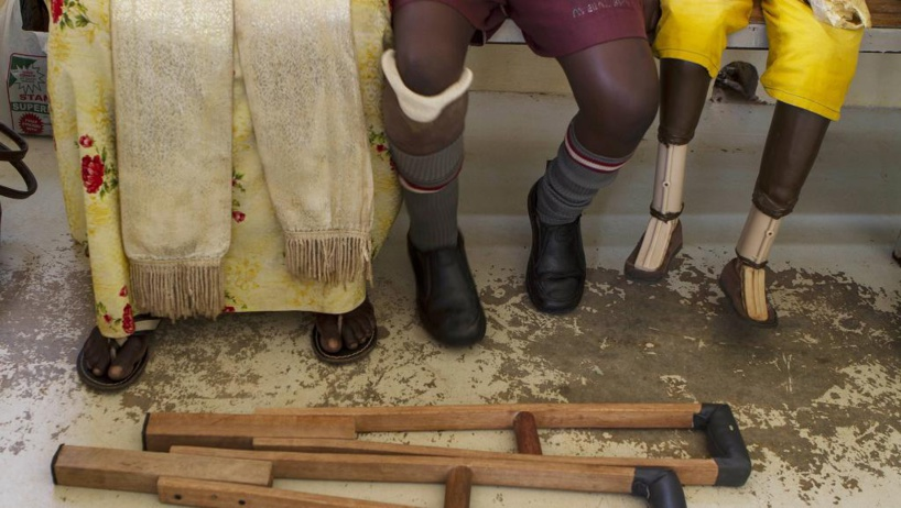 Rwanda: un couple fabrique des prothèses en matériaux recyclés