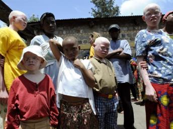 Des enfants de « la Maison des Albinos» à Ruyigi. AFP/STEPHANE DE SAKUTIN