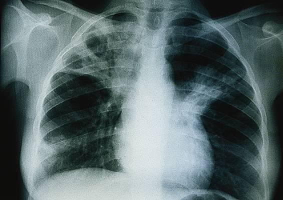 Tuberculose à Thiès : 500 nouveaux cas attendus en 2012