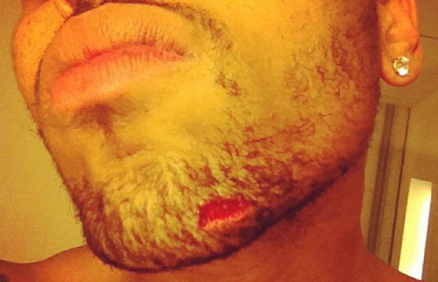 Chris Brown et Drake : leur bagarre est une affaire classée