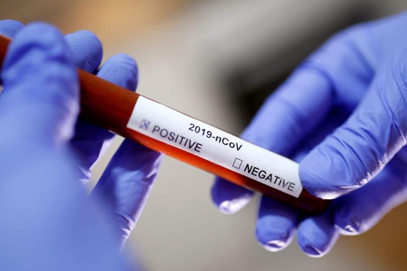 """Faux tests signalés à Roissy: """"Ce sont peut-être des raisons de temps qui les poussent à tricher"""", selon le Dr Ndiaye Diop"""