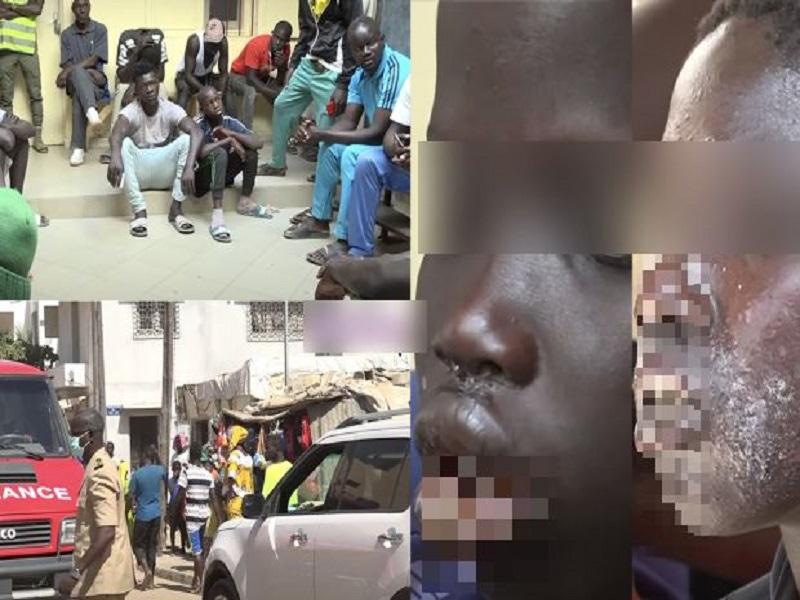 La maladie dermique détectée chez des pêcheurs atterrit à Rufisque: 180 patients dont 2 cas graves