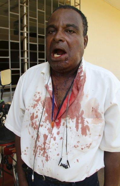 La FIJ condamne la violence policière sur des journalistes au Togo