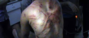 Diourbel-Accusation de torture : le détenu Issa Diaw « malmené » par deux matons