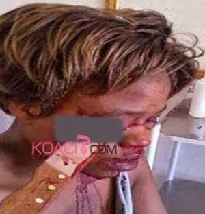 Surprise en flagrant délit d'adultère, son mari lui plante un couteau dans l'oeil