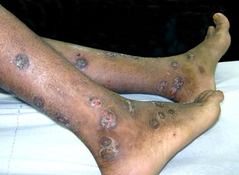 Castors pris de panique de la fièvre Ebola à cause d'un jeune garçon souffrant de dermatose sur le corps
