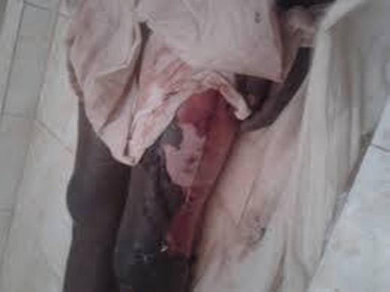 Mort Chérif Ndao-le sapeur pompier vengé ? Le Doyen des juges sert sept inculpations et vise deux médecins