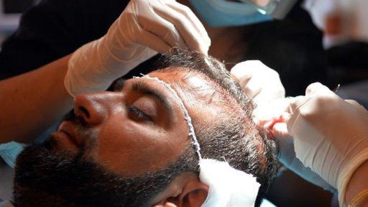 Pakistan: la greffe de cheveux, nouvelle arme de séduction massive