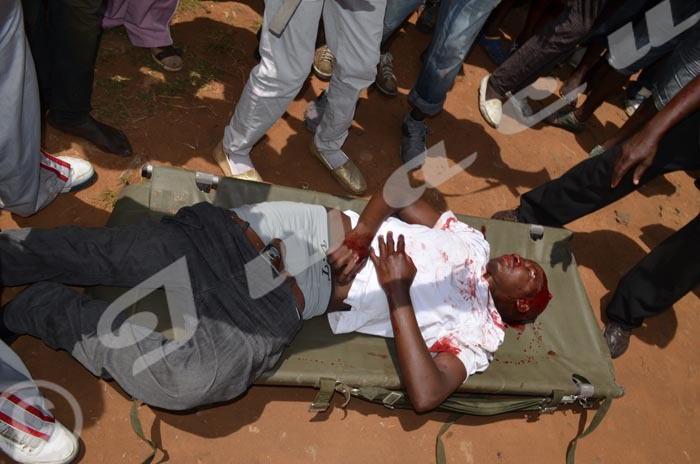 Burundi ça dégénère : La police tire à bout portant, des blessés très graves, un candidat porté disparu