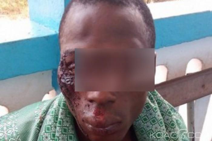 Côte d'Ivoire: Prétextant un couvre-feu, les Dozos chargent les villageois à l'ouest du pays, plusieurs blessés par balles