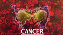 Cancer au Sénégal : Les chiffres qui interloquent.