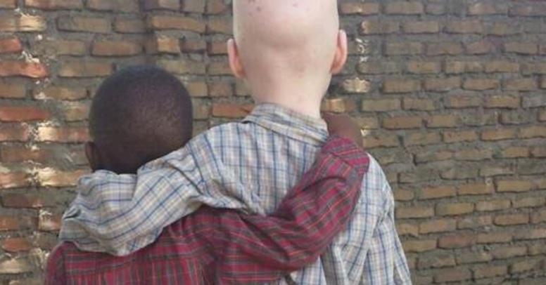 Journée internationale de l'albinisme : la peur au quotidien