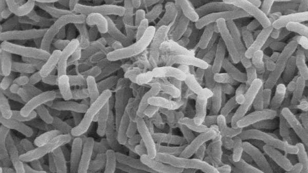 Cas de choléra en Centrafrique: le gouvernement se veut rassurant