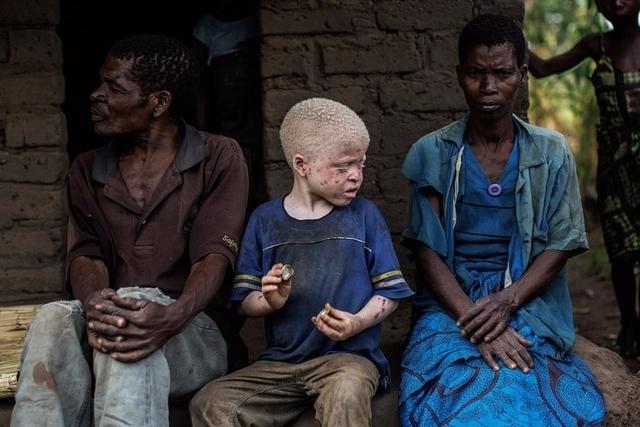 Mozambique : «Les personnes albinos sont pourchassées»