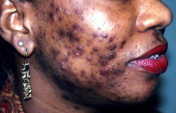 Transformations corporelles: la dépigmentation « Xessal » coûte 5 milliards de CFA aux ménages sénégalais