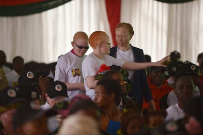 Kenya : Les albinos ont leur concours de beauté pour lutter contre les préjugés
