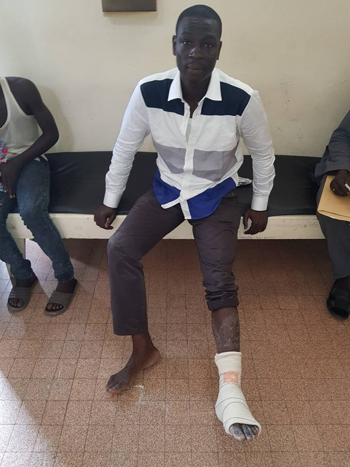 Assemblée nationale: Gallo Tall du PDS sort en boitillant et accuse la police