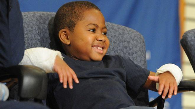 USA: première greffe des deux mains chez un enfant