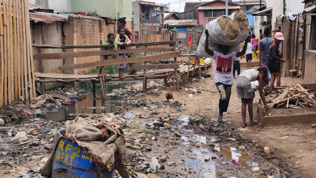 Cinq décès dus à la peste pulmonaire à Madagascar