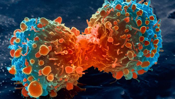 2000 nouveaux cas de cancer chaque année : la LISCA mise sur les consultations