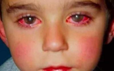 Cet enfant a perdu 75% de sa vue à cause d'un jouet que vous avez certainement à la maison