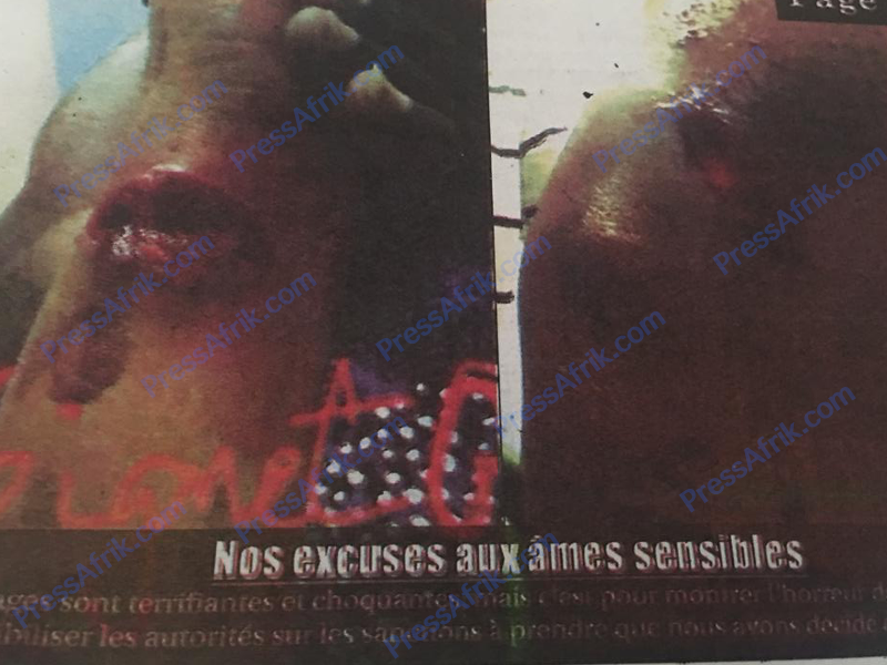 Charcutée par sa coépouse, la victime raconte l'horreur