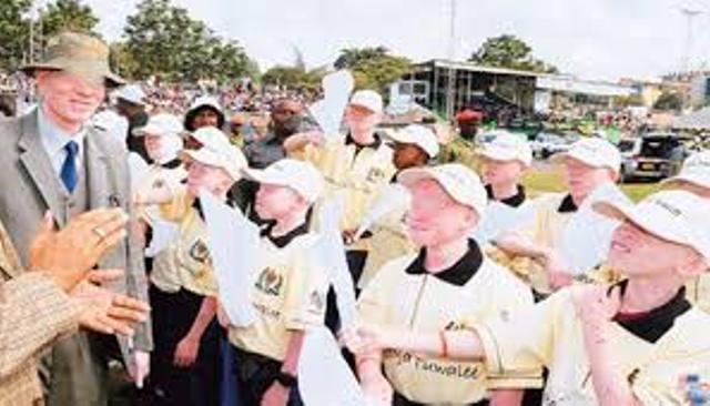 Sénégal: les albinos reprochent aux autorités la non prise en charge leurs préoccupations
