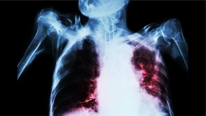 Afrique du Sud : un nouveau traitement plus rapide contre la tuberculose