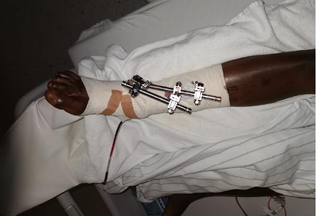 Allemagne: un Sénégalais saute de l'immeuble de la police après le rejet de sa demande d'asile