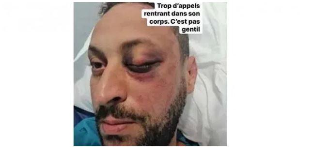 Du nouveau dans l'affaire du policier giflé par un Tunisien