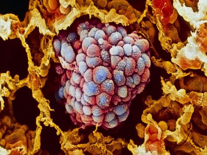 Coronavirus : Comment la technologie ARNm peut ouvrir les portes d'un vaccin contre le cancer