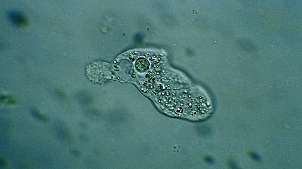 L'amoeba, l'organisme mangeur de cerveaux qui inquiète les Etats-Unis