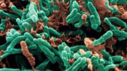 Des bactéries de la tuberculose pourraient être vite détectées