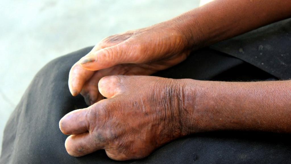 Madagascar: 1600 nouveaux cas de lèpre recensés chaque année