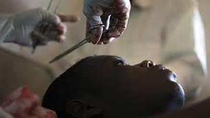 RDC : un nouveau massacre à Beni