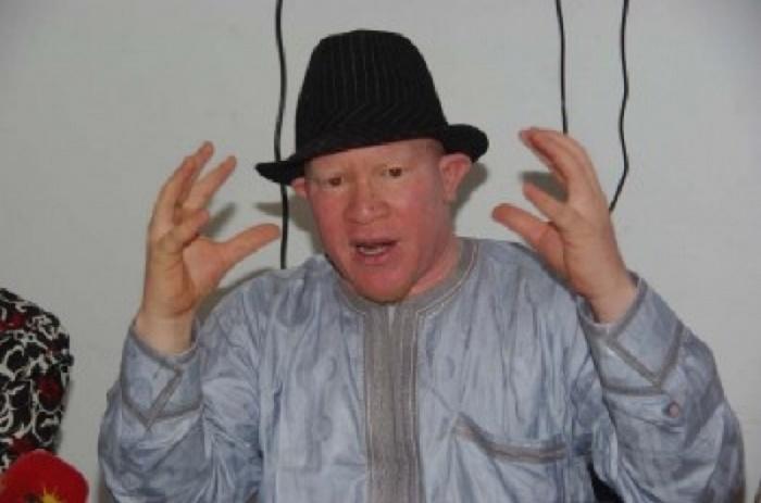 Mouhamadou Bamba Diop : «Je me demande si les albinos ne doivent pas quitter le Sénégal».