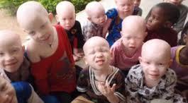 La chasse aux albinos s'intensifie au Malawi