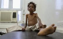 Famine : quatre pays touchés